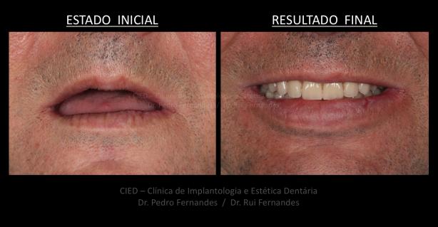 Foto 1 de CIED, Clínica de Implantologia e Estética Dentária