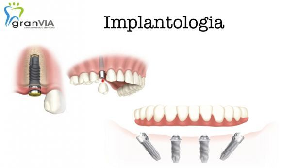 Foto 1 de Gran Via - Clínica Médica Dentária----Fânzeres/Gondomar